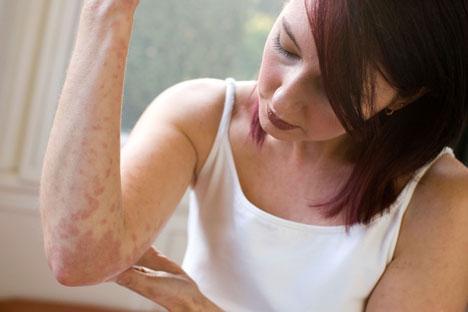 Псориаз входит в число хронических заболеваний