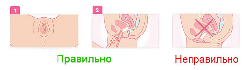 Инструкция по применению: Как вводить вагинальные свечи